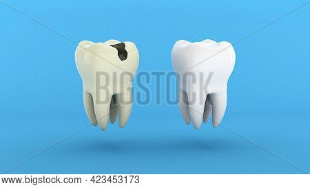 Bad Tooth. A Tooth With A Crease And A Hole And A Healthy White Tooth. 3d Render