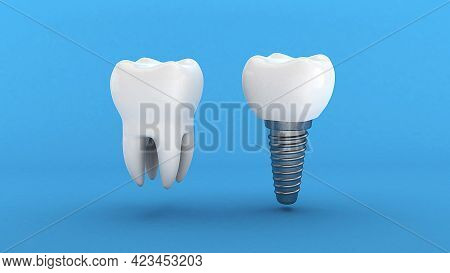 Dental Implant. White Tooth And Implant On A Blue Background. 3d Render