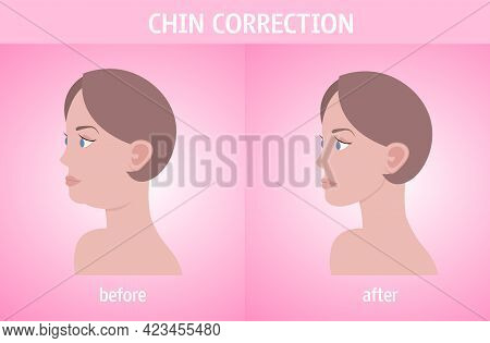 Woman Face Before And After Double Chin Fat Correction Procedure Aesthetic Medicine Concept Horizont