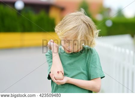 Cute Little Boy Looking On His Elbow With Wound. Child Healthcare And Medicine Concept. First Aid Fo