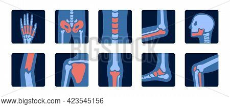 X-rays Of Human Joint Anatomy With Pain Parts. X-ray Examination Of Bones. Medical And Science Illus