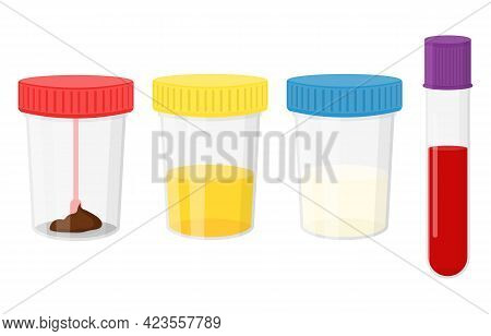 Laboratory Tests. Test Urine, Feces, Semen, And Blood In Plastic Jars With Colored Lids