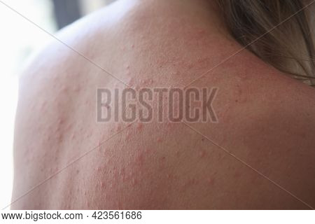 Woman Injured Back With Rash And Red Sun Spots