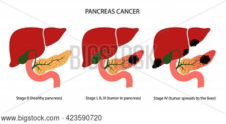 Pancreatic Cancer Stages, Pancreas Disease. Medical Appointment And Treatment In Clinic. Tumor, Pain