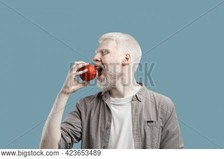 Eat Fruits. Young Albino Man Biting Fresh Red Apple, Standing Over Turquoise Studio Background