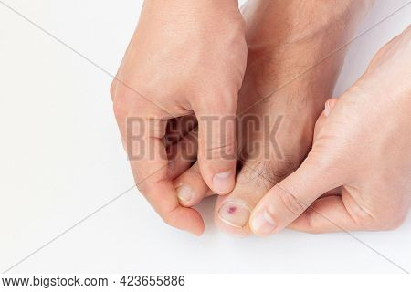 A Man Shows A Purple Bruise Under Toe Nail On White Background Close-up. Injury After Running Or Wal