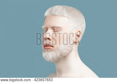 Abnormal Deviations Concept. Young Albino Man With Closed Eyes, Pale Skin And White Hair, Turquoise