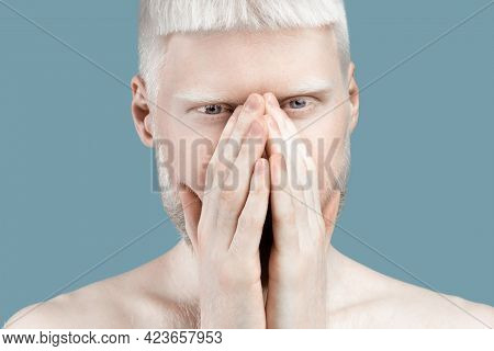 No Way. Albino Guy Covering Mouth With Both Hands And Looking At Camera, Standing Speachless Over Bl