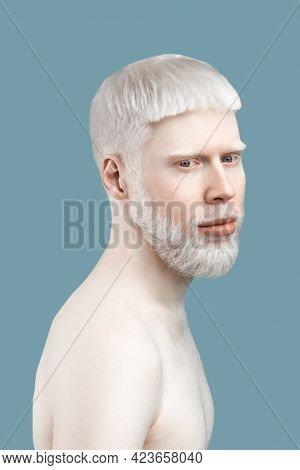 Carefree Young Albino Guy With Pale Skin And White Hair, Posing To Camera Without Shirt Against Turq