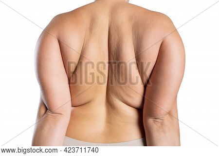 Overweight Woman With Fat Back, Obesity Female Body Isolated On White Background
