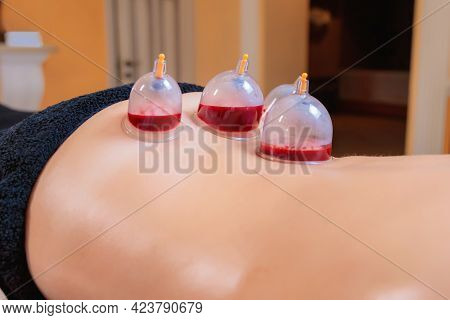 A Hijama Master Performs A Vacuum Blood Suction Procedure For A Young Girl. Close-up