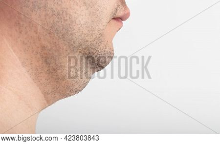 A Man Has A Thick Double Chin, Close-up. Correction And Removal Of Fat From A Double Chin, Plastic S