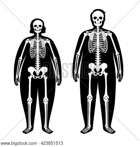 Skeleton System Human Bones Concept. X Ray With Overweight Male And Female Silhouette. Skull, Arms,