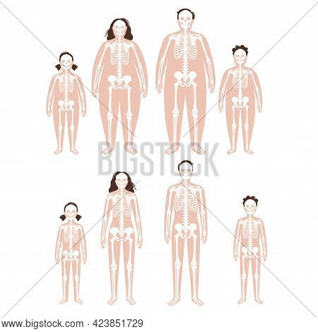 Skeleton System Human Bones Concept. X Ray With Overweight And Normal Male And Female Silhouette. Sk
