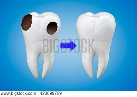 Carious Tooth Treatment Concept. A Tooth With Decay And A Healthy Tooth. Dental Theme. 3d Rendering.