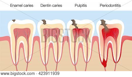 Teeth With Caries Stages, Development Of Tooth Decay With Enamel And Dentin Caries, Pulpitis And Per