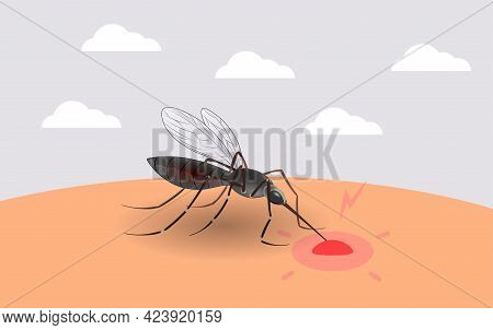 Mosquito Sucking Blood. Realistic Mosquito. Blood Sucking Insects, Peddler Of Dengue, Zika Virus And