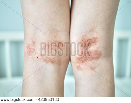 Eczema On Kid's Legs. Atopic Dermatitis Close Up. Allergy Spots And Red Itchy Skin Inflammation On C