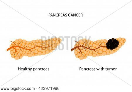 Pancreatic Cancer Logo. Pancreas With Tumor And Healthy Organ. Medical Appointment And Treatment. Pa