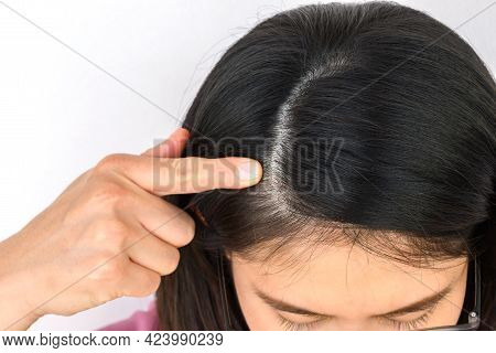 Cropped Shot Of Woman Pointing To A Part Of Her Thin Hair, She Had Hair Loss Problem. Female Pattern