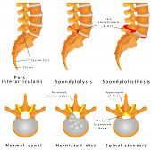Spine Fracture. Spondylolysis (Spondylolisthesis) is a defect in the bony ring comprising the spinal column. displacement of a lumbar vertebra, most commonly occurring after a break or fracture. poster