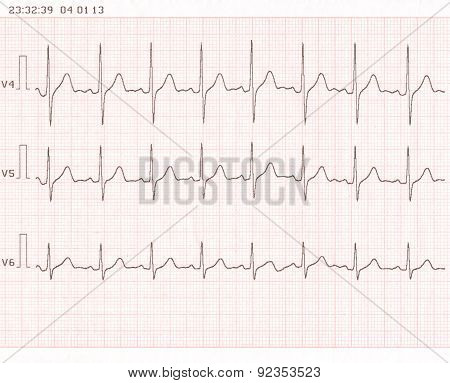 Cardiogram. Ecg Shows The Heart Beat