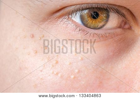 Milia (milium) - Pimples Around Eye On Skin.