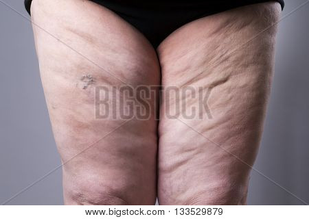 Varicose veins closeup. Thick female legs on a gray background poster