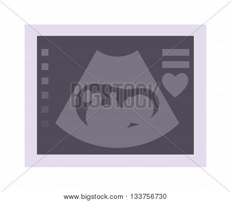 Obstetric ultrasound baby of fetus ecography scan. Vector illustration ultrasound baby pregnant maternity photo. Ultrasonic scan photo expecting life ultrasound baby care, pregnancy sonar.