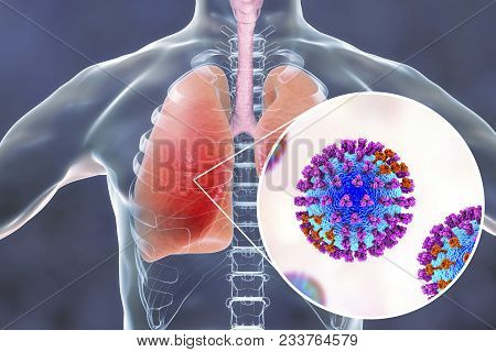 Flu Viruses In Human Lungs, 3d Illustration Showing Anatomy Of Human Respiratory System And Close-up