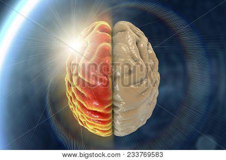 Migraine, Hemicrania, Medical Concept Showing Pain In Half Of Brain And Migraine Aura, 3d Illustrati