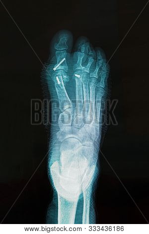 X-ray Of Foot After Surgery To Correct Hallux Varus Condition. Reconstruction Transverse Plane Devia