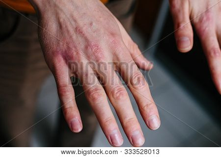High Angle View Of Hands Suffering The Dryness On The Skin And Deep Cracks On Knuckles. Eczema Or Ps
