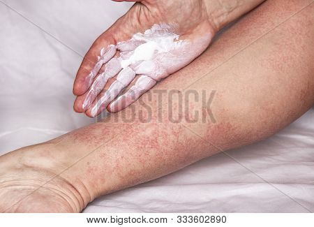 Allergic Reaction Treatment