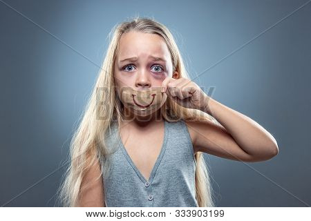 Sad And Frightened Little Girl With Bloodshot, Bruised Eyes And False Smile On Her Mouth. Concept Of