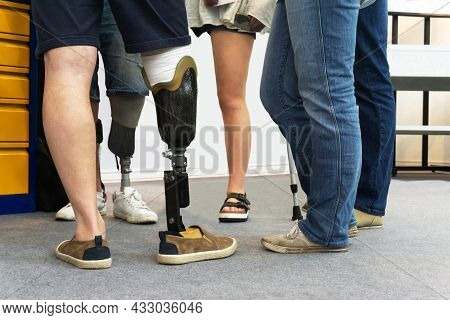 Prosthetic Leg. A Group Of People With Disabilities Are Standing Indoors. Cropped Frame. No Face