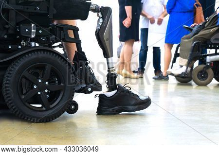A Man With A Prosthetic Leg In An Electric Wheelchair On The Background Of The Medical Staff. Rehabi