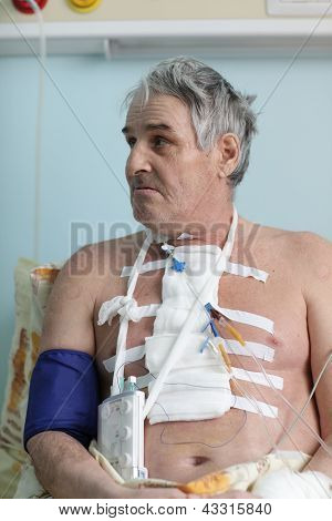 Senior Man With Pacemaker