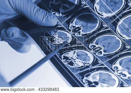 Neurosurgeon Shows The Point Of An X-ray Of The Human Brain With Pointer. Analysis Of Computerized T