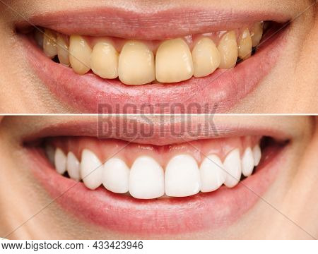 Perfect Healthy Teeth Smile Of A Woman. Teeth Whitening. Dental Clinic Patient. Image Symbolizes Ora