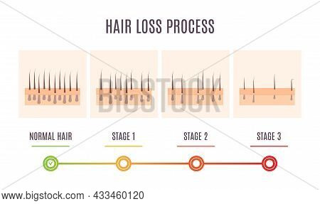 Scalp Skin Cross Section Diagram Showing Hair Loss Process