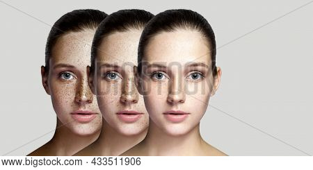 Step By Step Concept Of Healing And Removing Freckles. Closeup Portrait Of Beautiful Brunette Woman