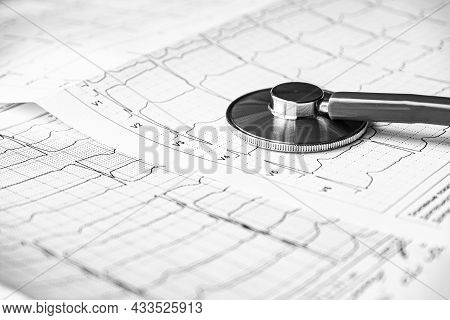 Stethoscope On The Electrocardiogram Ecg Graph Top View . Ekg Printout With Stethoscope. Medical Hea