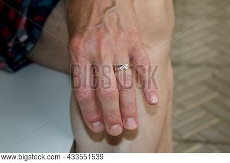 Close-up Of An Elderly Woman's Hand Showing Wrinkles And Lines. A Wedding Ring On The Finger.