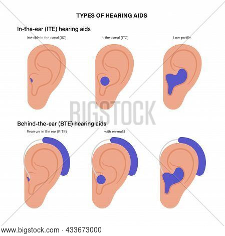 Types Of Human Hearing Aids Poster. In The Ear And Behind The Ear Technology. Different Placement Of