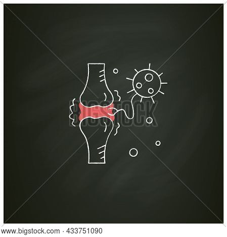 Joint Pain Chalk Icon.covid Molecule Attacking Joints.concept Of Corona Virus Disease System Health