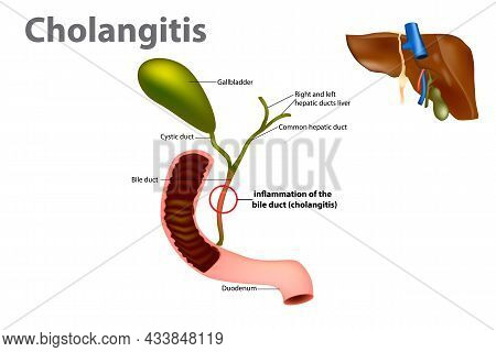 Ascending Cholangitis, Also Known As Acute Cholangitis Or Simply Cholangitis, Is Inflammation Of The