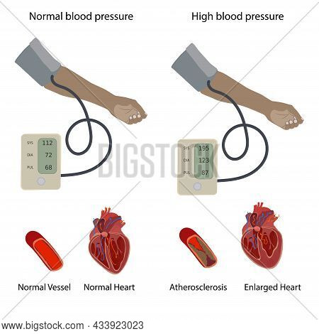 Normal, Enlarged Heart, Cardiomegaly, Atherosclerosis. A Dark Skinned Hand And A Tonometer With Hype