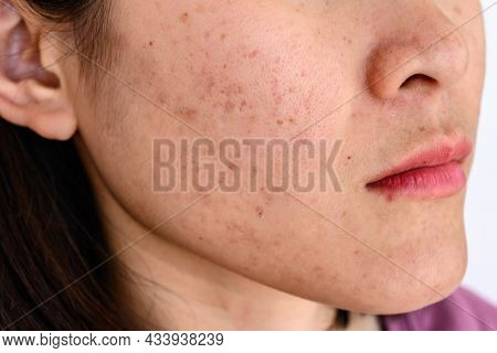 Side View Close-up Of Woman Face Has Variety Problems On Her Skin (such As Acne, Pimple, Pores And M