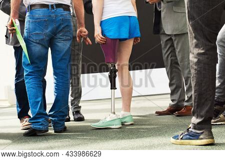 Woman With Prosthetic Leg In A Specialized Clinic. Many Prosthetists Work With A Client, Customize T